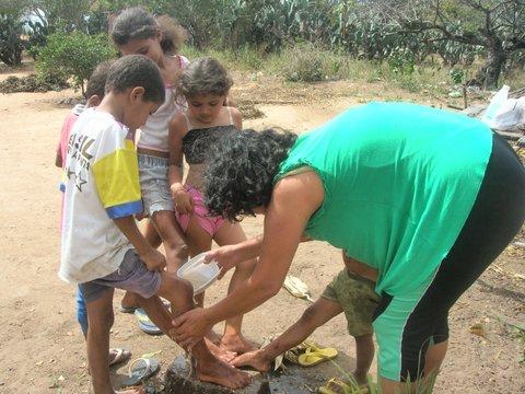 Jornalista Liliana Peixinho cuida de crianças com problemas de pele, por causa escassez de água. Foto: Divulgação.